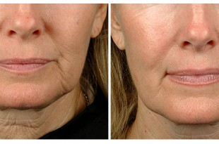 Pelleve Skin Tightening - All The Necessary Details About The Treatment