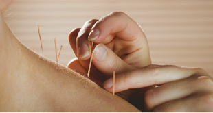 How Effectively Can Acupuncture Work For Neck & Shoulder Pain