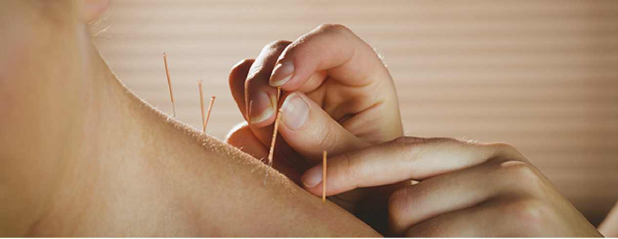 How Effectively Can Acupuncture Work For Neck Amp Shoulder
