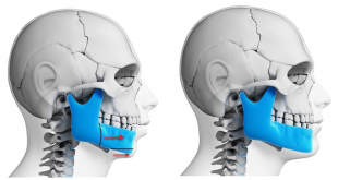 Different Benefits And Effects Of Jaw Surgery