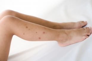Watch For These Signs That You May Have Bed Bugs